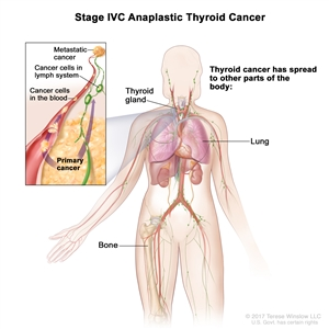 Stage IVC anaplastic thyroid cancer; drawing shows other parts of the body where thyroid cancer may spread, including the lymph nodes, lung, and bone. An inset shows cancer cells spreading from the thyroid, through the blood and lymph system, to another part of the body where metastatic cancer has formed.