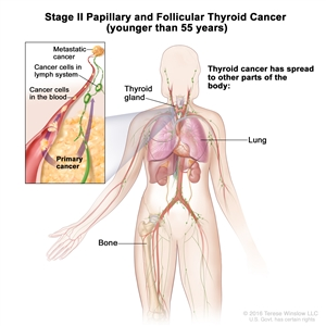 Stage II papillary and follicular thyroid cancer in patients younger than 45 years; drawing shows other parts of the body where thyroid cancer may spread, including the lymph nodes, lung, and bone. An inset shows cancer cells spreading from the thyroid, through the blood and lymph system, to another part of the body where metastatic cancer has formed.