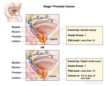 Prostate Cancer Treatment Pdq Treatment Patient Information