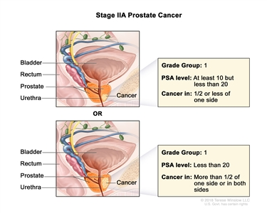 stage 1 prostate cancer signs and symptoms)