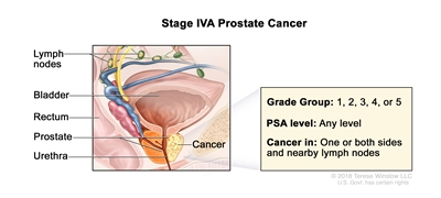 stage 3 prostate cancer signs