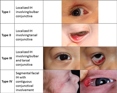 Photographs showing different types of infantile hemangiomas involving the conjunctiva.