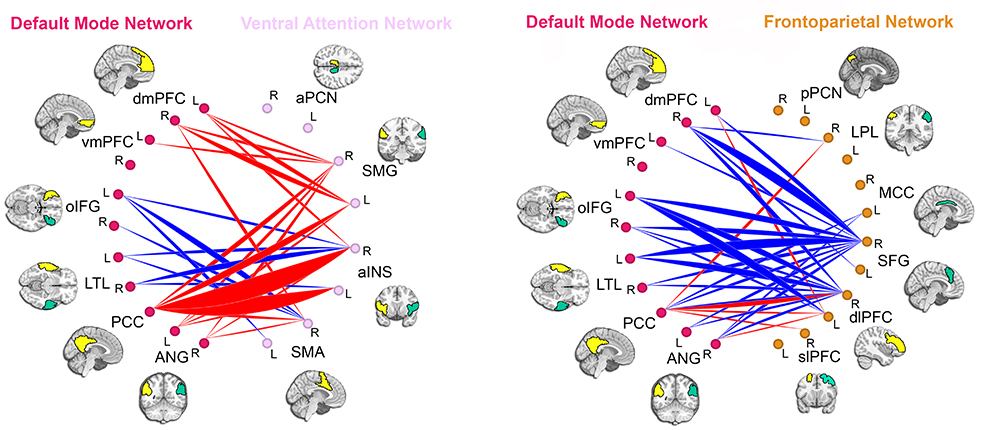 Slow To Mature Quick Distract ADHD Brain Study Finds Slower Development Of Key Connections