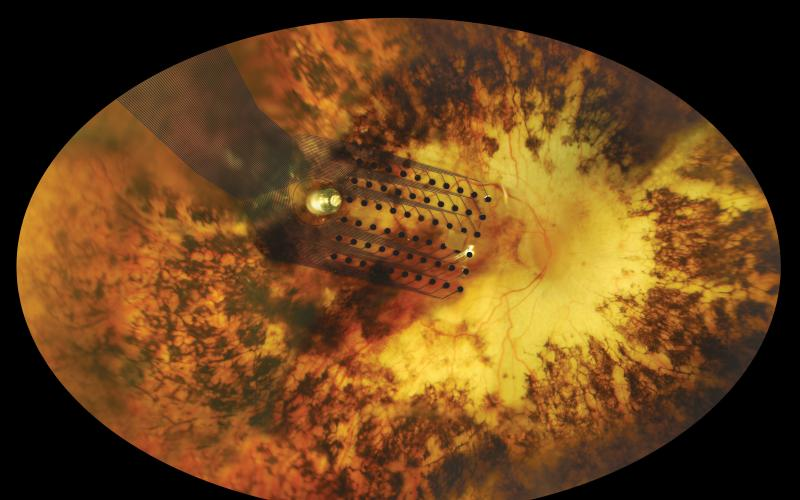 The electrode array as it is positioned on the retina