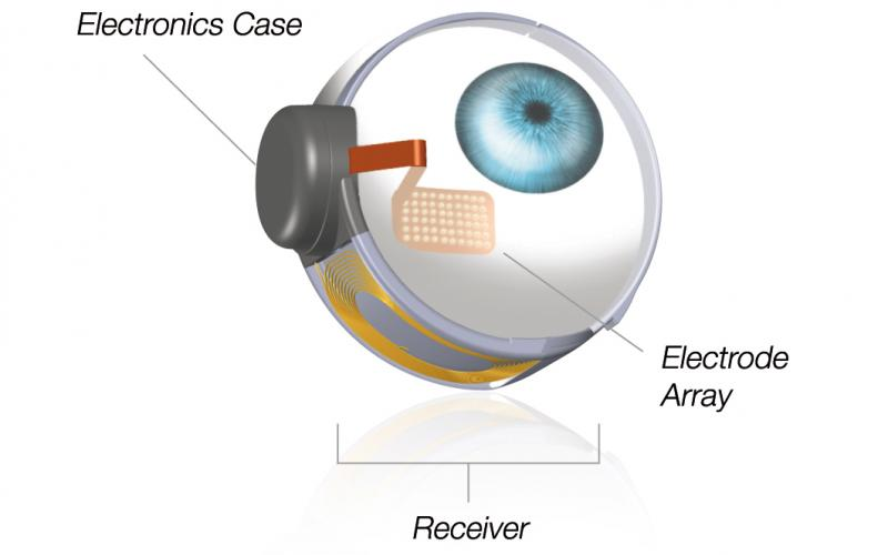 Diagram shows that an electronics case and electrode ray are positioned in the eye along with a receiver