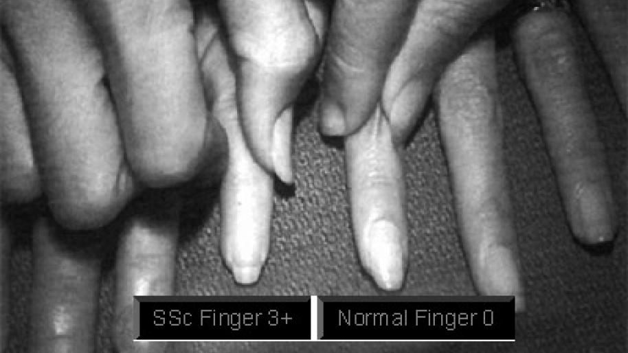 Image of hands effected by Scleroderma