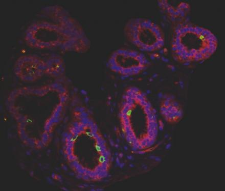 microscope image of breast cancer stem cells