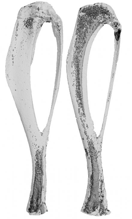 Bone marrow fat