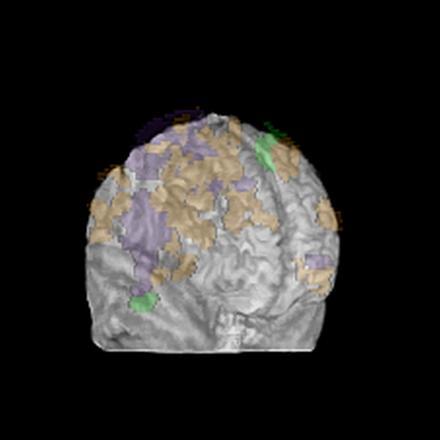 Fuzzy brain