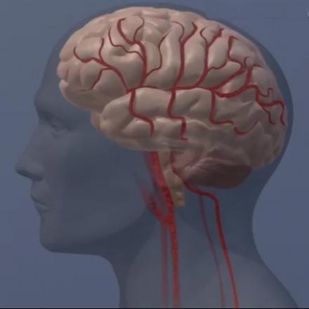 Brain development center austin picture 4