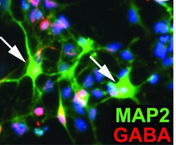 Dravet induced neurons