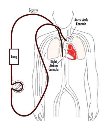ECMO diagram