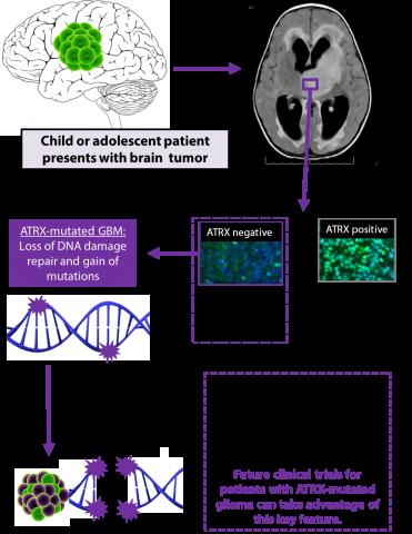 ATRX brain tumor model