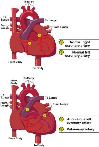Anomalous Left Coronary Artery Diagram
