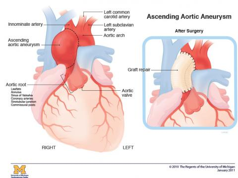 Illustration of ascending aortic aneurysm within heart before surgery and with repair and stitches after surgery