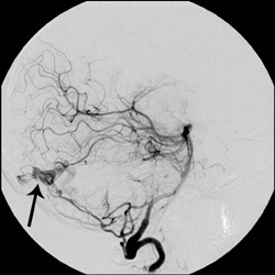 Lateral cerebral angiogram imaging showing a dural arteriovenous fistula within the posterior cerebellum