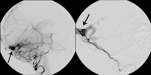 Lateral cerebral angiogram
