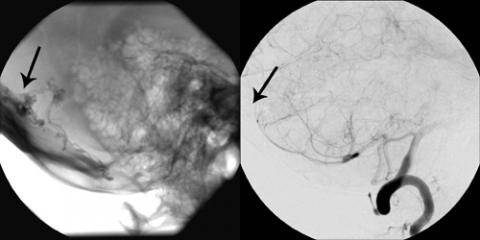 Lateral Cerebral Angiogram