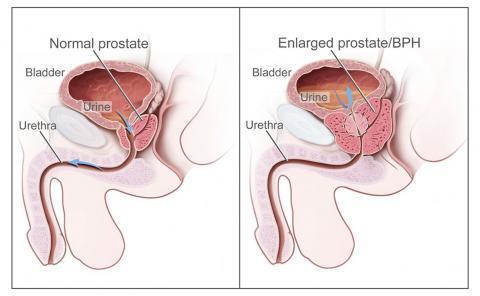 Normal vs enlarged prostate image