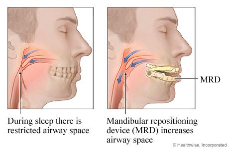 Illustration showing side view of heads with restricted airway space and with dental device increasing airway space