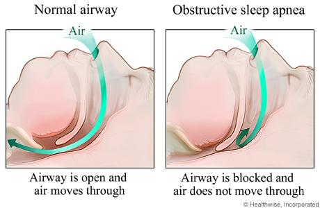 Drawings of side view of heads showing obstructed airway and normal airway