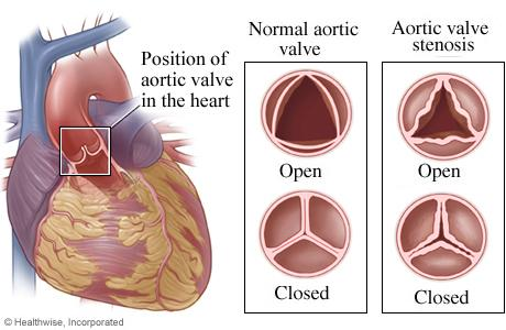 Illustration showing position of aortic valve in the heart, normal aortic valve and aortic valve stenosis