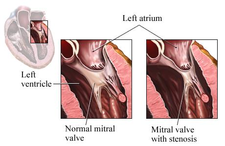 Illustration showing normal mitral valve and mitral valve with stenosis