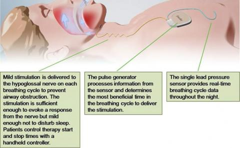 Illustration showing patient with nerve stimulator implanted and text explaining how it works