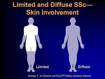 Limited and diffuse SSC Skin Involvement.  Scleroderma