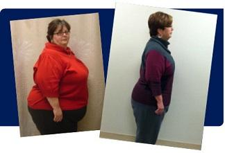 Before and after photos of bariatric female patient