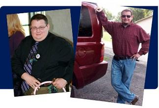 Before and after photos of male bariatric patient, before seated, after standing by red car