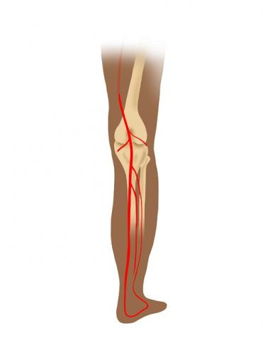 Illustration of lower leg showing compression of popliteal artery in bright red