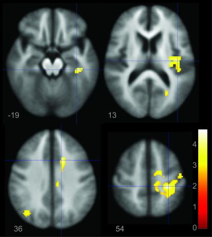 Depression bipolar brain fMRI