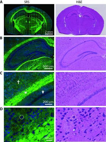 SRS microscopy vs. staining