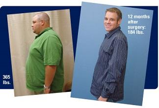 Before and after photos of man with text, '395 lbs.' and '12 months after surgery: 184 lbs.'