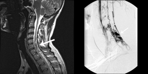 Lateral T2 image