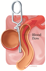 Illustration showing a surgical clip inserted at the bottom of a brain aneurysm