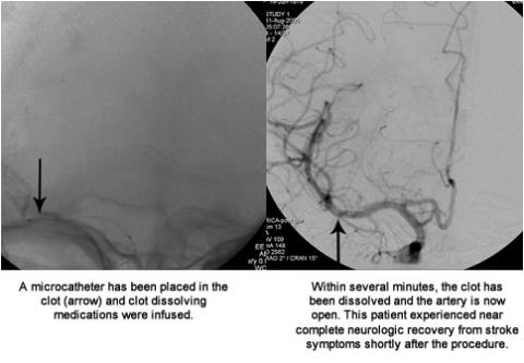 left image: A microcatheter has been placed in the clot (arrow) and clot dissolving medications were infused. , Right image: Within several minutes, the clot has been dissolved and the artery is now open. This patient experienced near complete neurologic