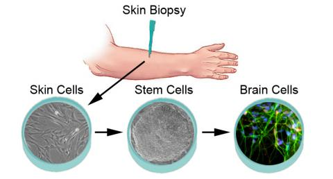 Process for making neurons from skin cells