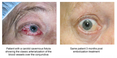 left: Patient with a carotid cavernous fistula showing the classic arterialization of the blood vessels over the conjunctiva, Right: Same patient 3 months post embolization treatment
