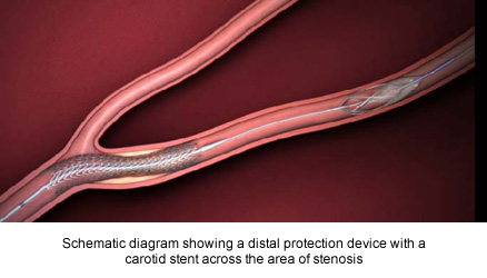 Schematic diagram showing a distal protection device with a carotid stent across the area of stenosis