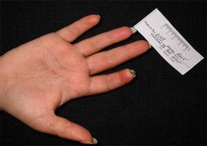 Scleroderma digital finger image