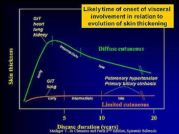 Disease Duration graph for scleroderma