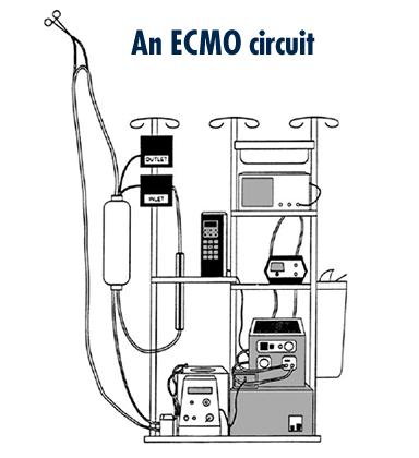 ECMO circuit