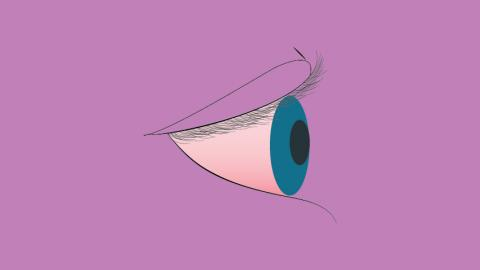 Illustration of Pink eye