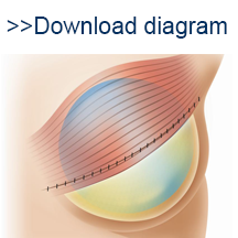 Implant thumb image