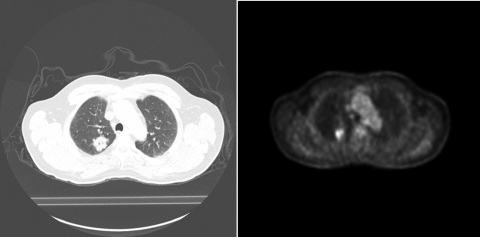 Lung CT/PET