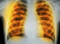 Lung XRay for ILD