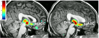 Placebo and antidepressant: effect on the depressed brain