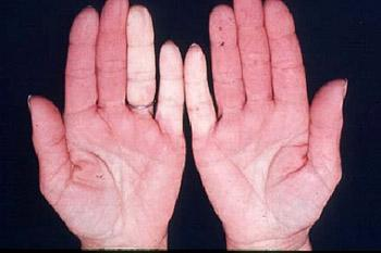 Raynaud Phenomenon image of hands